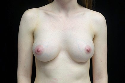 Breast Augmentation (Implants) Before & After Patient #17178
