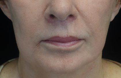 Lip Lift Before & After Patient #17142