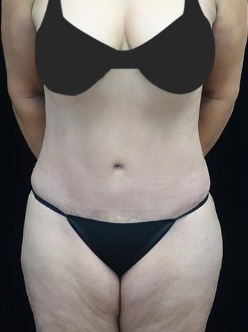Lipoabdominoplasty Before & After Patient #17145
