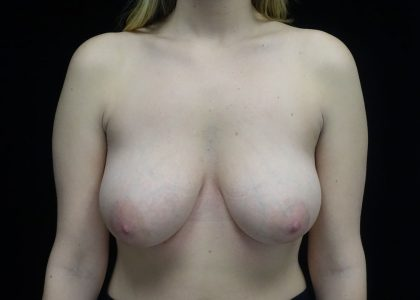 Breast Lift Before & After Patient #17348
