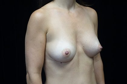 Asymmetric Tuberous Breasts Before & After Patient #17277