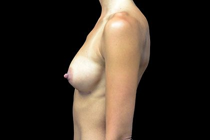 Breast Augmentation (Implants) Before & After Patient #17291