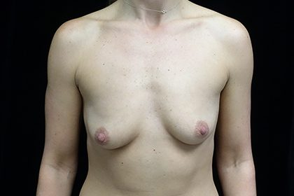 Breast Augmentation (Implants) Before & After Patient #17305