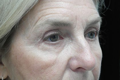 Blepharoplasty Before & After Patient #17284