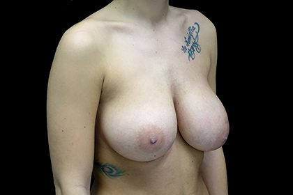 Breast Reduction Before & After Patient #17312