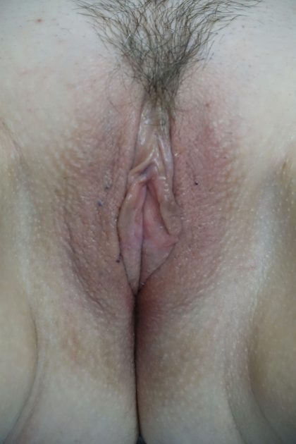 Labiaplasty Before & After Patient #17358