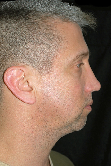 Chin Implants Before & After Patient #17257