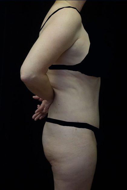 Lipoabdominoplasty Before & After Patient #17361