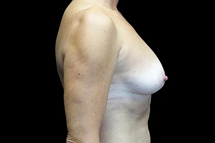 Breast Augmentation (Fat Transfer) Before & After Patient #17319