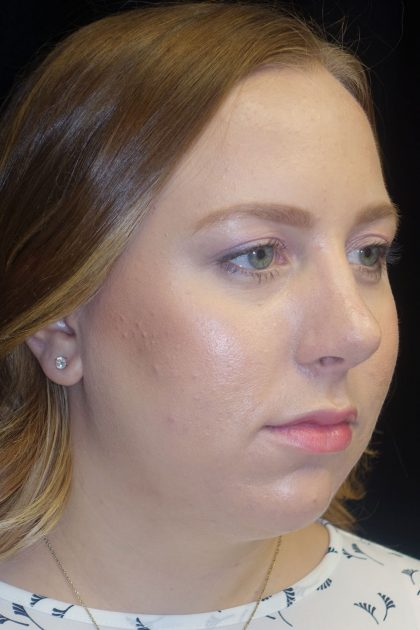 Rhinoplasty Before & After Patient #17409