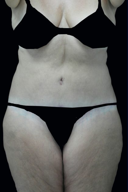 Lipoabdominoplasty Before & After Patient #17368