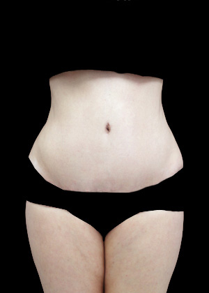Lipoabdominoplasty Before & After Patient #17326