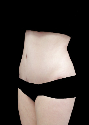 Lipoabdominoplasty Before & After Patient #17326