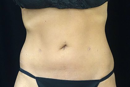 CoolSculpting Before & After Patient #17264