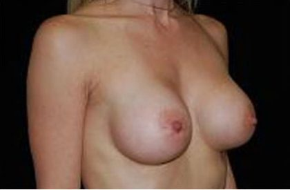 Breast Augmentation (Implants) Before & After Patient #17222