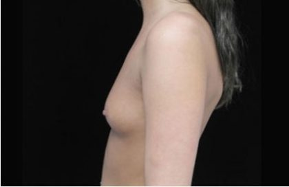 Breast Augmentation (Implants) Before & After Patient #17229