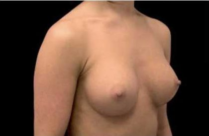Breast Augmentation (Implants) Before & After Patient #17236