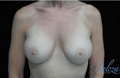 Breast Augmentation (Implants) Before & After Patient #17250