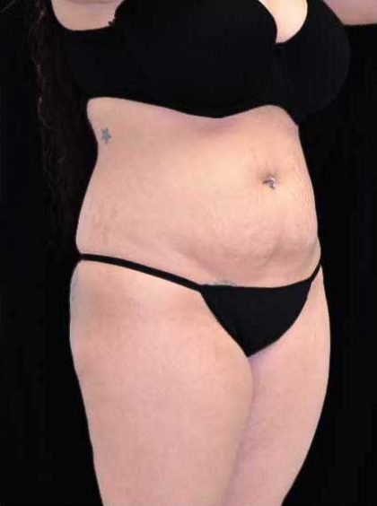 Tummy Tuck Before & After Patient #17446