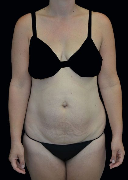 Lipoabdominoplasty Before & After Patient #17546
