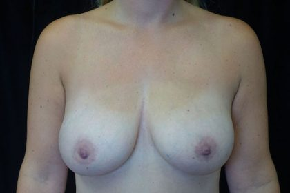 Breast Augmentation (Implants) Before & After Patient #17567