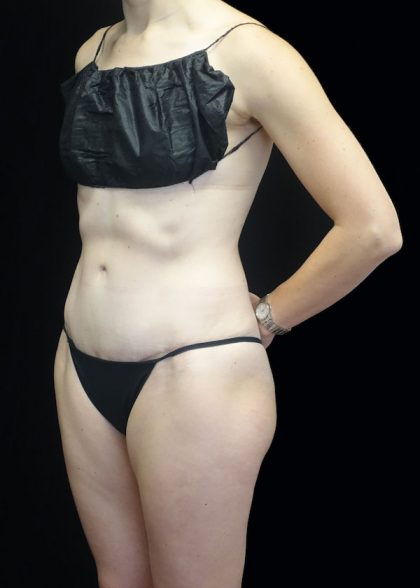 Tummy Tuck Before & After Patient #17577