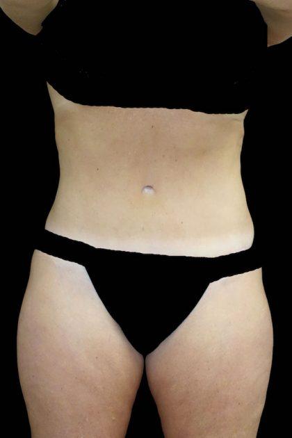 Lipoabdominoplasty Before & After Patient #17553