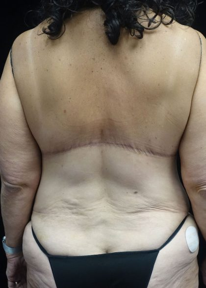 Liposuction Before & After Patient #17574