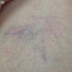 Leg Vein Treatment with Laser Before & After Patient #17649