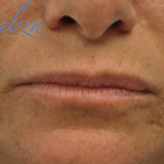 Lip Augmentation - Fillers Before & After Patient #17652