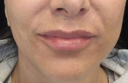 Lip Augmentation - Fillers Before & After Patient #17742