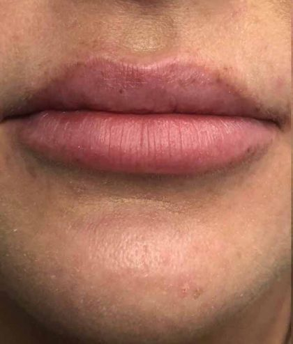 Lip Augmentation - Fillers Before & After Patient #17758