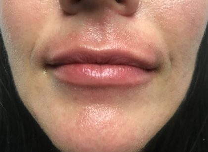 Lip Augmentation - Fillers Before & After Patient #17755