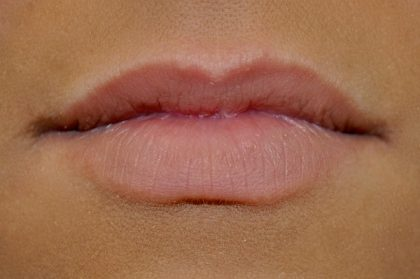 Lip Augmentation - Fillers Before & After Patient #17752