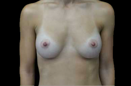 Breast Augmentation (Implants) Before & After Patient #17801