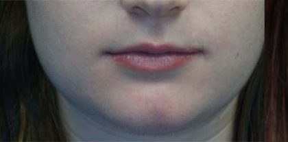 Lip Augmentation - Fillers Before & After Patient #17746