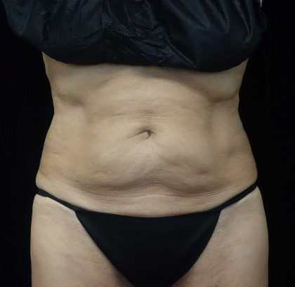 CoolSculpting Before & After Patient #17938