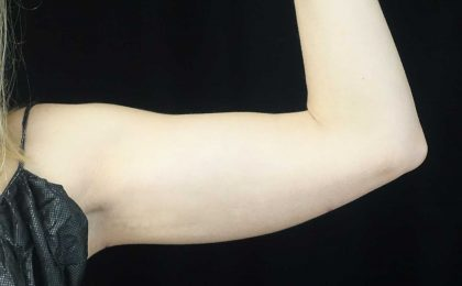 CoolSculpting Before & After Patient #17926