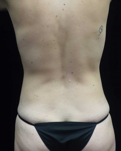 CoolSculpting Before & After Patient #17919