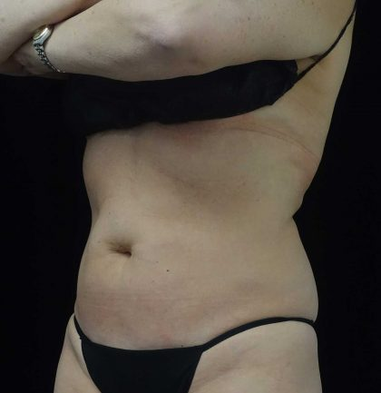 CoolSculpting Before & After Patient #17931