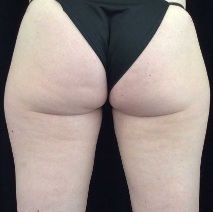 CoolSculpting Before & After Patient #17914