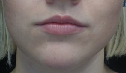 Lip Augmentation - Fillers Before & After Patient #17969