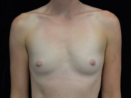 Breast Augmentation (Implants) Before & After Patient #18026
