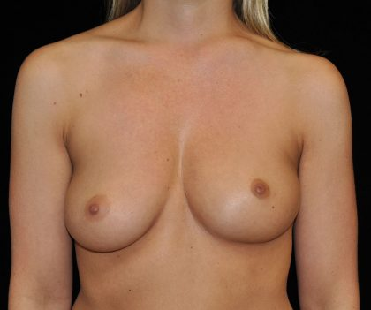 Asymmetric Tuberous Breasts Before & After Patient #18019