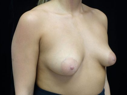 Breast Lift with Implants Before & After Patient #18011