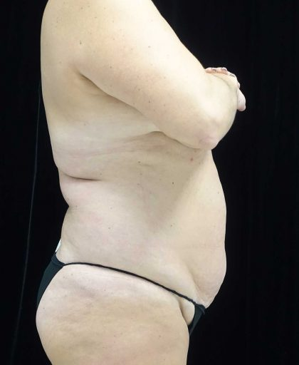 Lipoabdominoplasty Before & After Patient #18074