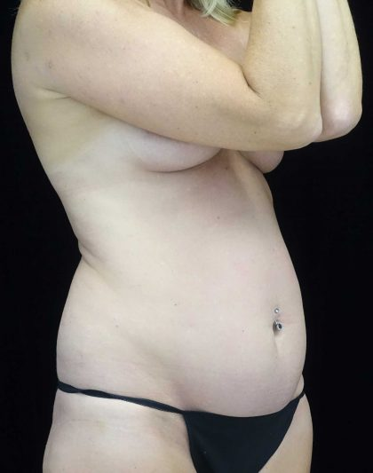 Tummy Tuck Before & After Patient #18081
