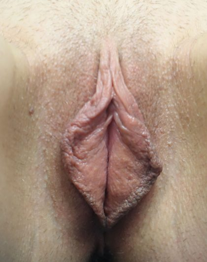 Labiaplasty Before & After Patient #18071