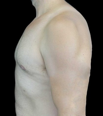 Gynecomastia Before & After Patient #18051