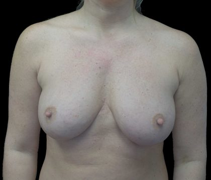 Breast Augmentation (Implants) Before & After Patient #18047